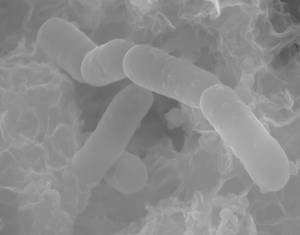 Sulfate-reducing bacteria (Desulfopila corrodens strain IS4) in their extracellular polymeric substance on an iron substrate causing anaerobic microbially influenced corrosion.